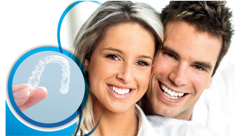in-house clear aligners